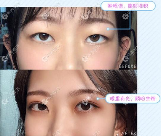 陈光平医生割双眼皮效果图