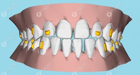 时代天使和可丽尔隐形牙套的矫正速度不同