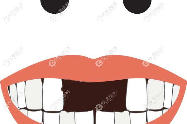 门牙缺失2颗用烤瓷牙还是全瓷牙