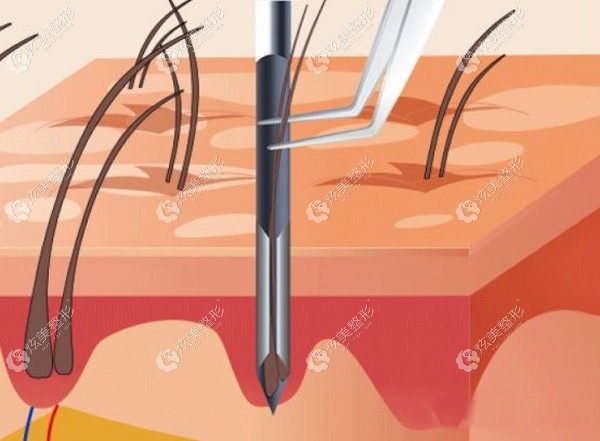 纳米微针种植有效是因为把毛囊种到了真皮层成活
