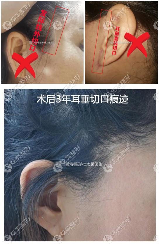 杜涛超医生小切口拉皮术后没有疤痕