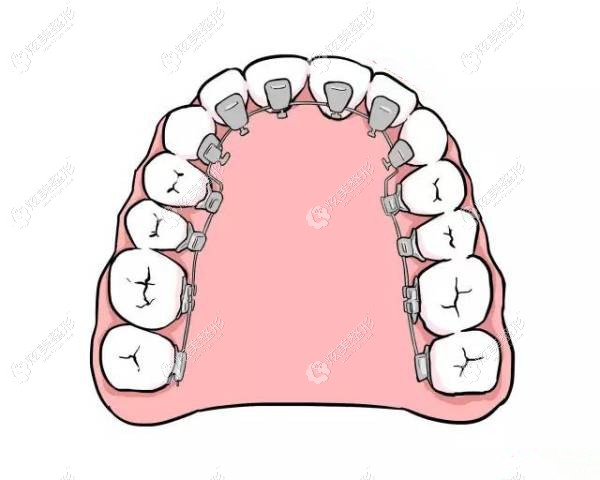 舌内侧牙套的优缺点