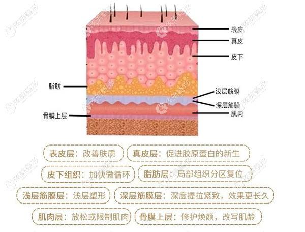 广运整形做的提拉美除皱从皮肤深层改善