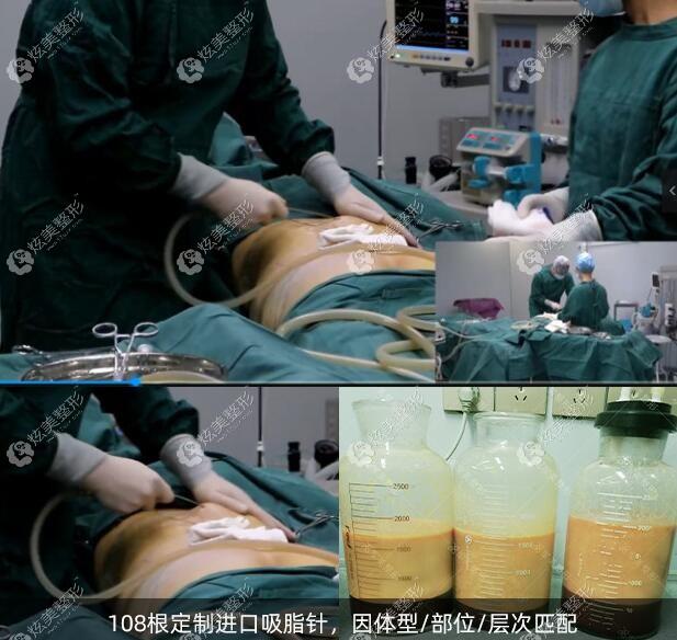 广州军美王世虎大腿吸脂技术