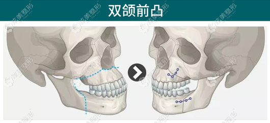 双颌前凸在广州广大做正颌的价格