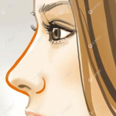 贵阳华美的龙医生做鼻子的风格