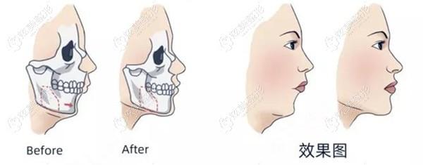 王涛医生做正颌手术例子