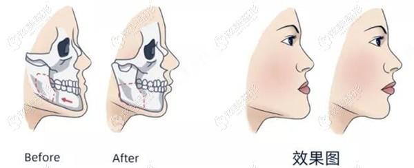 王涛医生做正颌手术改脸型例子