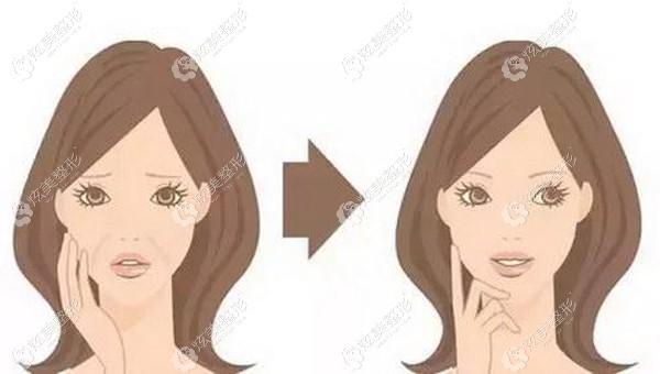 45岁女士在沈阳名流做面部拉皮术后对比