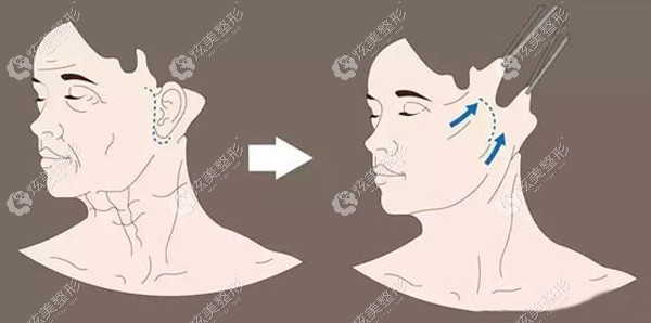 到沈阳名流做面部拉皮术后改善的样子