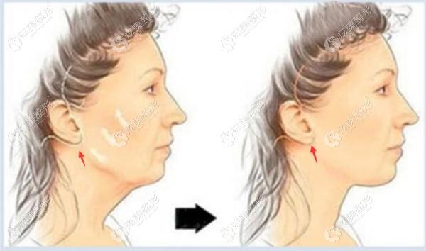 在沈阳名流做面部拉皮手术的切口