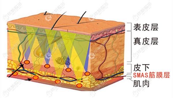 沈阳名流整形拉皮除皱在肌肉层操作