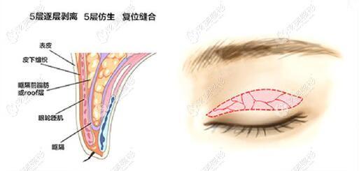 肖庆华做双眼皮手术过程