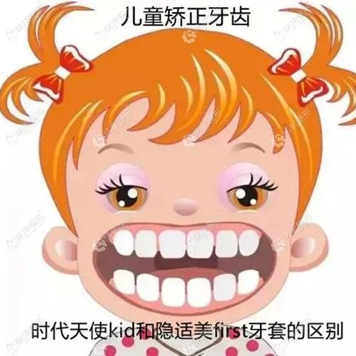 儿童矫正牙齿用时代天使kid和隐适美first牙套有啥区别?哪个正畸速度快