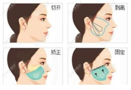 杭州做拉皮除皱的手术费用,可以参考排名前十做脸部拉皮好的医院价格哦