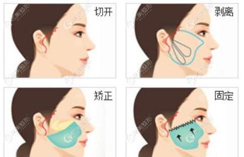 杭州做一次拉皮手术除皱得多少钱
