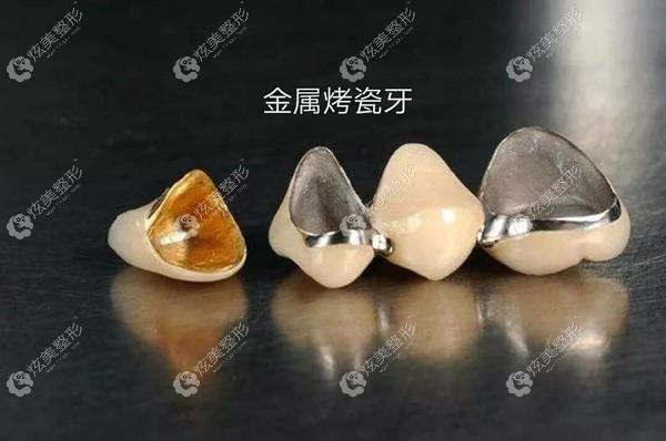 装了烤瓷牙后牙龈发黑还有救,但这种牙根发黑可能影响牙齿寿命哦