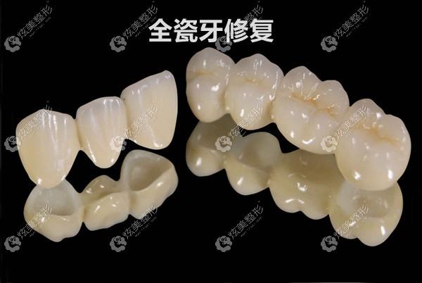 采用全瓷牙修复牙龈发黑的烤瓷牙