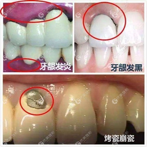 烤瓷牙牙龈发黑会造成的危害