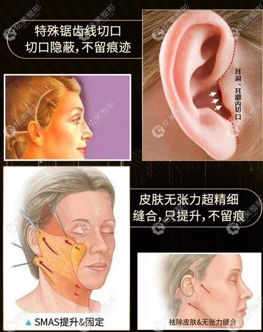 黄广香做的SMAS拉皮面部提升除皱术