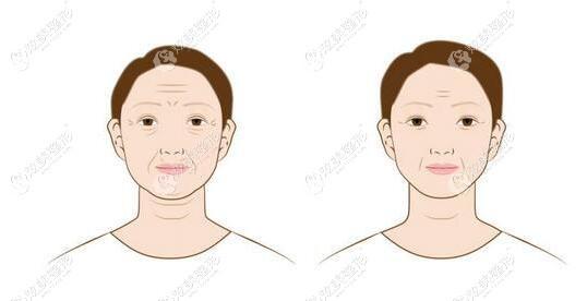 真人找李晓东做过面部提升的