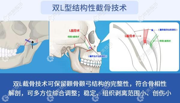 籍建华医生做颧骨颧弓整形的原理
