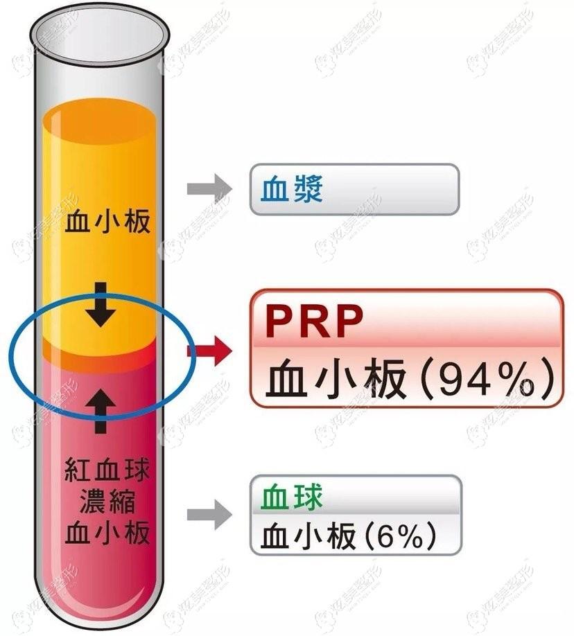 PRP脂肪填充是什么