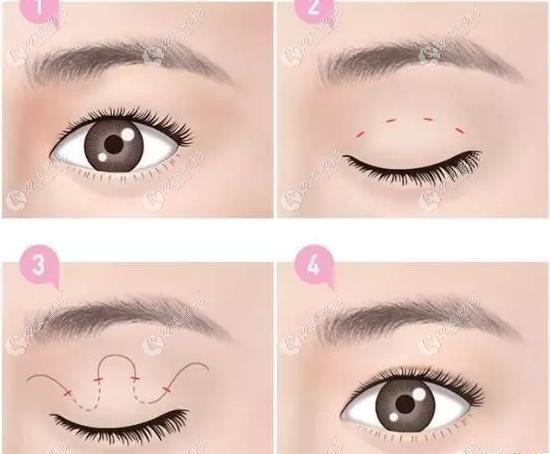 刚更新了青岛华颜美武伟亮医生做双眼皮的价格和双眼皮修复的例子