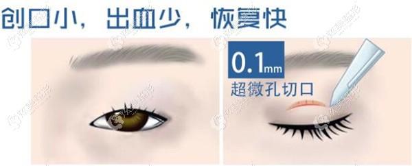 青岛武伟亮医生做急速纳米双眼皮手术