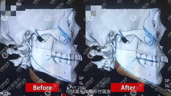 武汉华美下颌角磨骨对比照能看出来付国友医生改脸型的技术挺好的