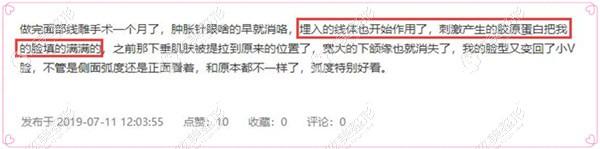 刘德东医生做埋线提升后的顾客评价