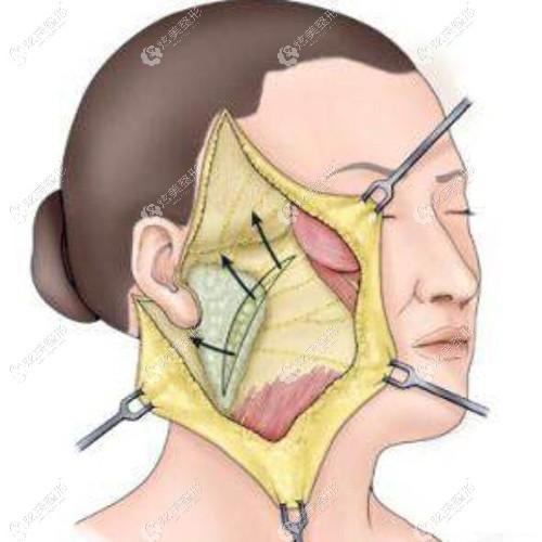 传统的全脸拉皮手术方式