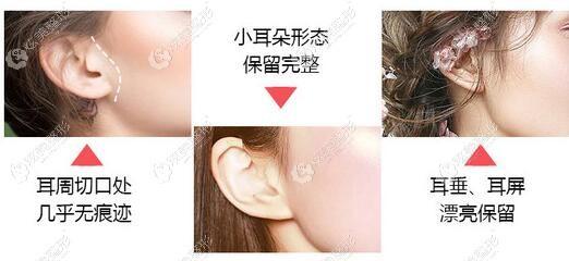 华韩柳民熙做的拉皮手术耳朵形态好不会下垂变形