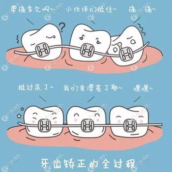 上海圣贝做牙齿矫正的原理