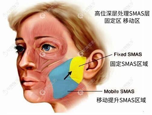 黄广香所做的SMAS提升除皱术