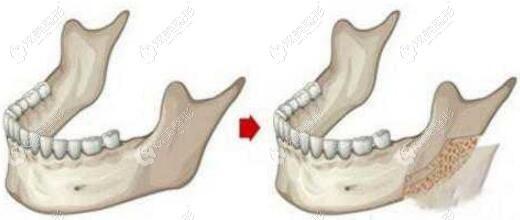 重庆时光整形姜民范医生做的长曲线下颌角+磨外板