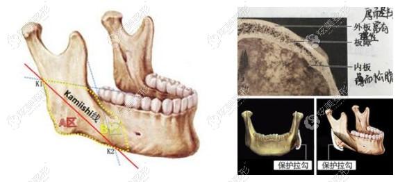 重庆华美整形潘宝华医生做长弧线下颌角手术