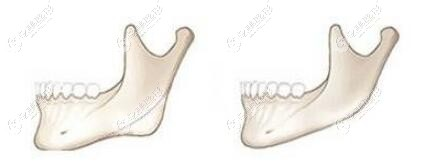 重庆华美整形做下颌角手术对比