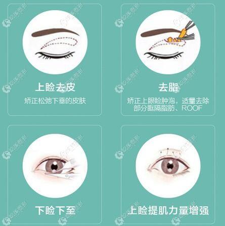 周秀峰医生所做的灵韵魅力眼综合技术