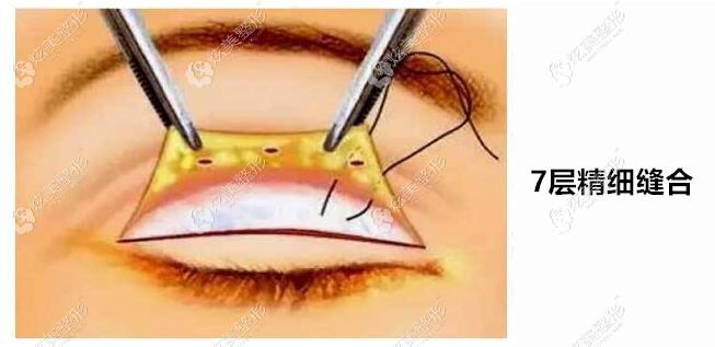 周秀峰做的双眼皮是7层精细缝合
