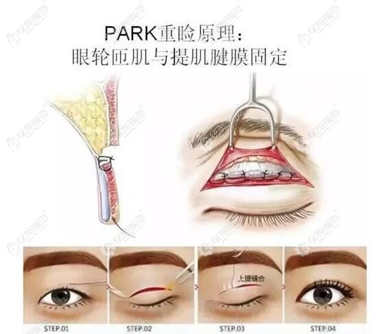 王志是五洲莱美整形主推做Park法眼综合的医生