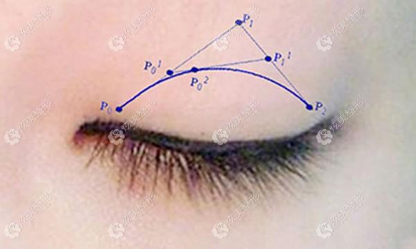 郑州华领用贝塞尔曲线做双眼皮