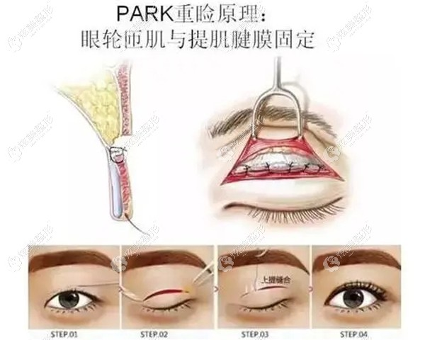 华领做双眼皮技术好是因为用的park法