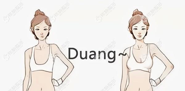 杭州艺星整形做曼托隆胸对比