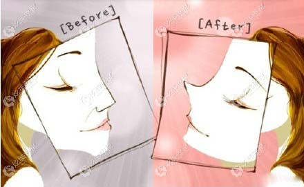 济南韩氏整形王召东的隆鼻修复图