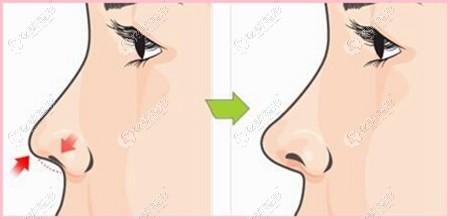 王召东院长做鼻修复图片