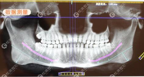 南医大吴国平医生做下颌角手术怎么样?医师简介中来了解口碑